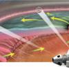 Chirurgie micro-invasive du glaucome (MIGS)